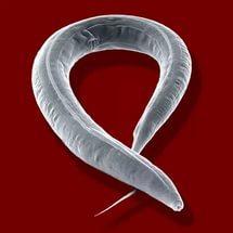 В каких органах человеческого тела могут обитать глисты и паразиты?