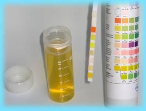 Какие бывают анализы на глисты? При каких симптомах их сдавать?