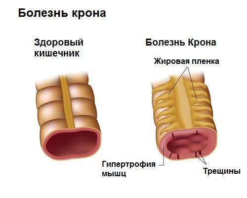 Выраженная болезненность в животе и диарея: этиологические факторы и терапия
