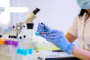 Эффективные лекарства от гельминтоза для профилактики взрослых