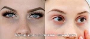 Синяки под глазами (тёмные круги). Причины, способы устранения и лечение