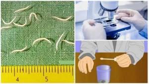 Маленькие белые черви в кале у взрослых и детей. Что это? Как лечить?
