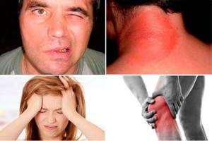 Клещевой боррелиоз (болезнь Лайма). Симптомы. Чем опасен? Лечение и профилактика