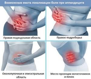 Симптомы аппендицита. Как вовремя их распознать?