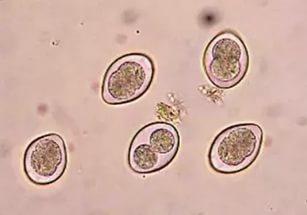 Простейшие паразиты: виды, воздействие на организм и вызываемые патологии