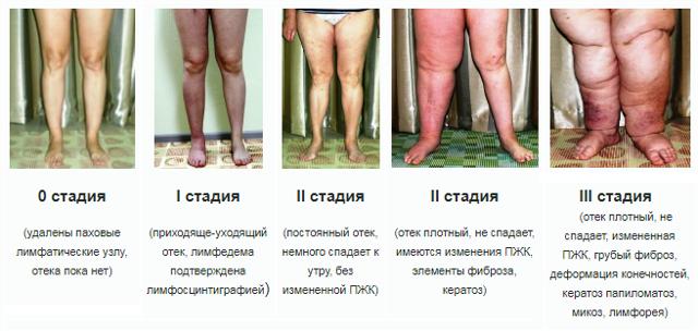 Слоновость ног. Признаки, причины и народные способы лечения