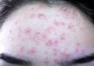 Подкожный клещ (Демодекоз). Как выглядит? Симптомы. Лечение