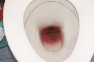 Кровь в кале. Причины. Разновидность. Диагностика. Лечение