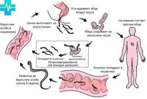 Жизненный цикл остриц. Пути заражения, симптомы, лечение