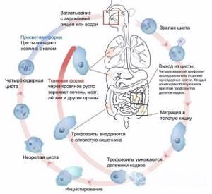 Кишечный амебиаз: признаки, лечение и профилактические меры