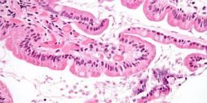 Протозойная инфекция - что это? Какие виды, симптомы? Эффективное лечение и профилактика