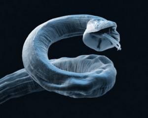 Народные средства для борьбы с глистами в домашних условиях