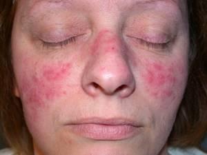 Причины возникновения, признаки и лечение подкожного клеща на лице