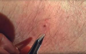 Как правильно снять клеща с кожи человека?
