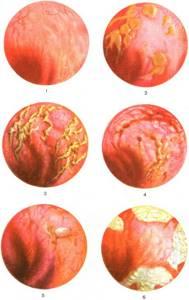 Катаральный проктит что это такое? Какие симптомы? Как лечить?