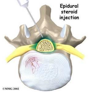 Очаги в спиномозговом канале на уровне L5 и крестце - советы врачей на каждый день
