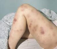 Острый миелобластный лейкоз - советы врачей на каждый день