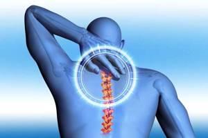 Боли в позвоночнике - советы врачей на каждый день