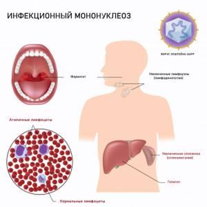 Носитель инфекции Эпштейн-Барр - советы врачей на каждый день