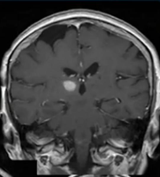 Головные боли. Диагноз по МРТ - советы врачей на каждый день