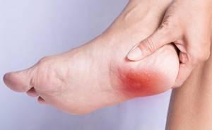 Боль в пятке - советы врачей на каждый день