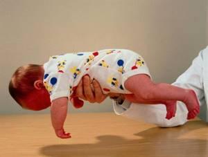 Гипотонус. ребенок ослаблен методы - советы врачей на каждый день