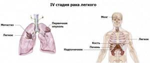 Железистый рак лёгких 4степень - советы врачей на каждый день