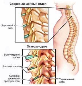 Сильная головная боль с тошнотой, киста прозрачной перегородки, шейный остеохондроз - советы врачей на каждый день