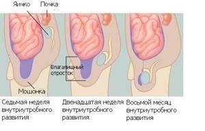 Хориоидальная киста у младенца - советы врачей на каждый день