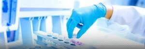 Нужно ли сдавать мазок на цитомегаловирус - советы врачей на каждый день