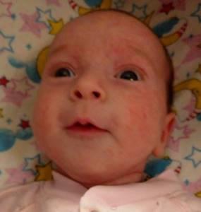Акне новорождённых или аллергия - советы врачей на каждый день