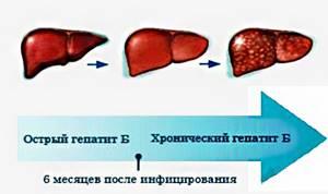 Гепатит В - сосотояние 3-мй год НЕВЫНОСИМОЕ при лечении ТЕНОФОВИРОМ - советы врачей на каждый день
