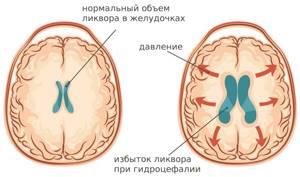 Диагноз Идиопатическая внутричерепная гипертензия Нарушение венозного оттока от головного мозга - советы врачей на каждый день