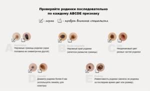 Выпуклая родинка с детсва (может с рождения) 0,8 диаметр - советы врачей на каждый день
