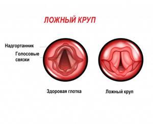 Ларингит( ложный круп) каждый месяц - советы врачей на каждый день