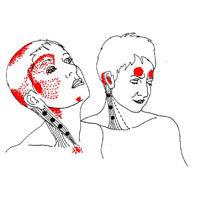 При приеме плавикса очень болит голова и шатает - советы врачей на каждый день