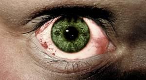 Краснота под глазами на холоде - советы врачей на каждый день