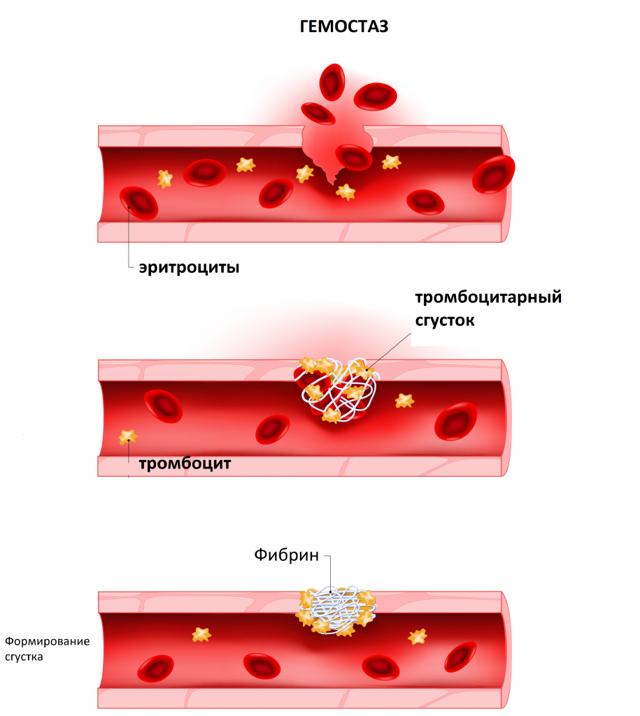 Обоснованность назначения исследования: тромбоцитарный гемостаз - советы врачей на каждый день