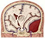 Подострая суб-эпидуральная гематома височно-теменной локализации - советы врачей на каждый день