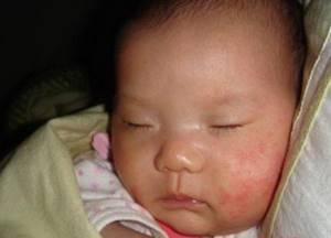 Пятнышко на щеке у доченьки не проходит - советы врачей на каждый день
