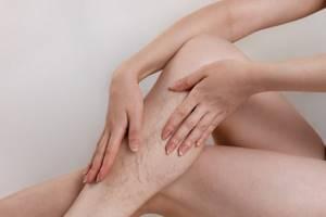 Можно принимать при варикозное болезни гормональные препараты? - советы врачей на каждый день