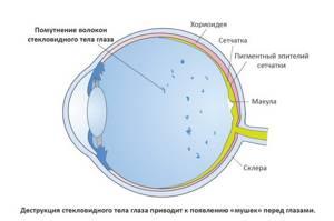 Плавающее пятно в глазу - советы врачей на каждый день