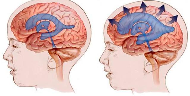 Повторное мрт - признаки гидроцефалии? - советы врачей на каждый день