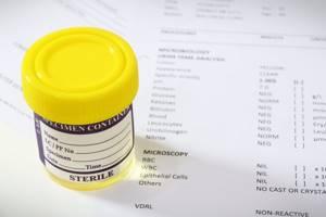 Расшифровка анализов торчин при беременности - советы врачей на каждый день