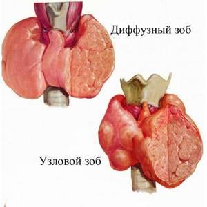 Образование щитовидной железы - советы врачей на каждый день