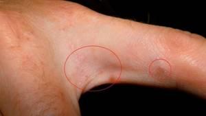 Как лечить красные точки на руках сопровождающие зудом? - советы врачей на каждый день