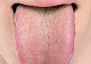 Налет на языке - советы врачей на каждый день