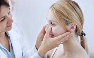 Насморк, зеленые сопли неделю - советы врачей на каждый день