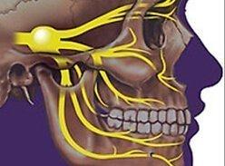 Синдром Горнера на фоне мигрени - обратим ли? - советы врачей на каждый день