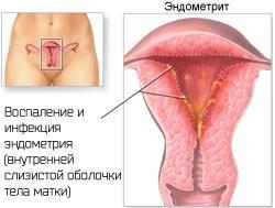 Прыщ на половом органе - советы врачей на каждый день